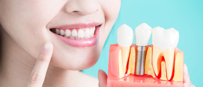 Dental Implants, Dentist in North York Toronto